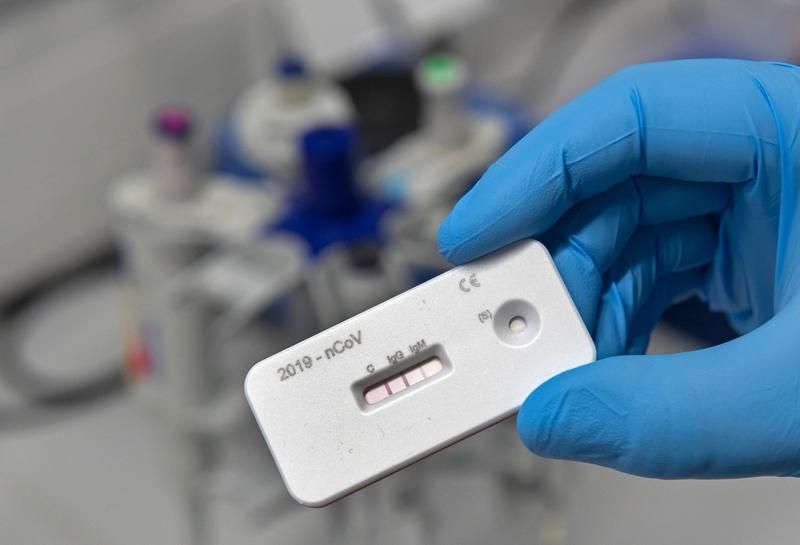 Antibody tests do not guarantee immunity